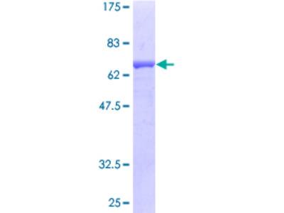 SAE1 Protein