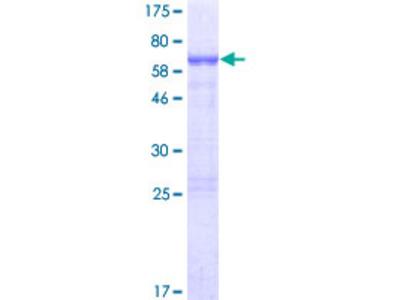 NHLRC2 Protein
