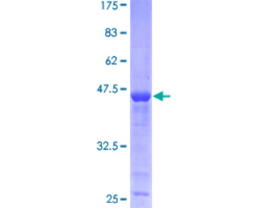 PPP1R14B Protein