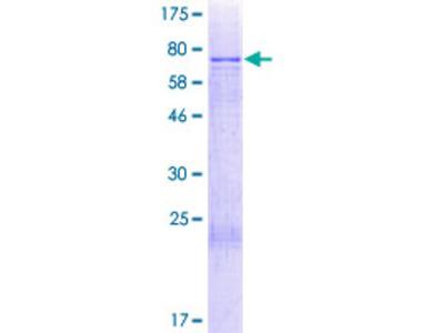CCDC130 Protein