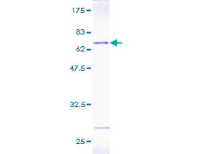 PSMD7 / MOV34 Protein