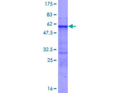 RFXAP Protein
