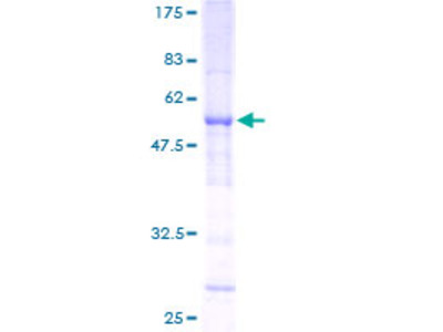 SLC25A27 / UCP4 Protein