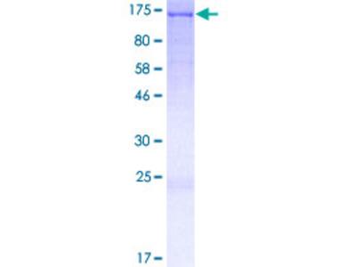 AFAP1L2 / XB130 Protein