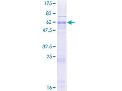 SLC25A14 / UCP5 Protein