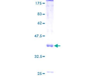 HPT / MRS2L Protein
