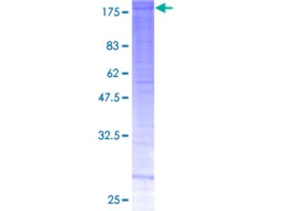 SMARCC2 Protein