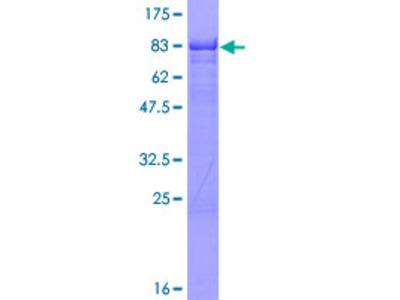 IKZF1 / IKAROS Protein