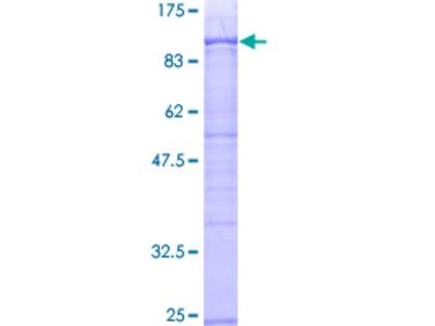 XRCC6 / Ku70 Protein