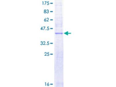SLC50A1 / SCP Protein
