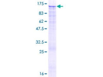 EZH2 Protein