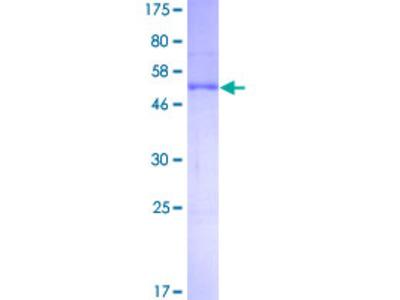 NAA10 / ARD1A Protein