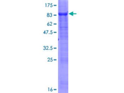 SESN2 / HI95 Protein