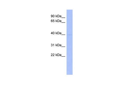 MEIS1 antibody - middle region (ARP32017_P050)