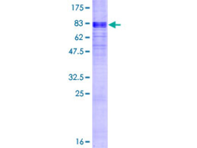 SLC16A1 / MCT1 Protein