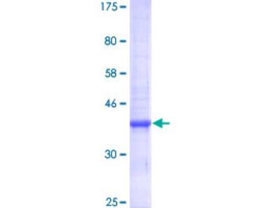ZNT5 / SLC30A5 Protein