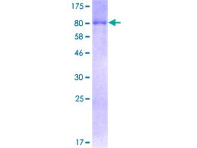 SQSTM1 Protein