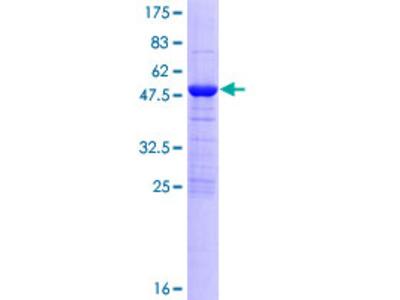 MOB4 / PHOCN Protein
