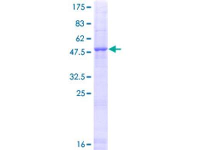 CELA1 / Pancreatic Elastase 1 Protein