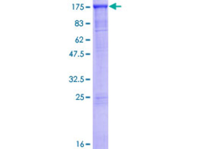 SMARCAD1 Protein