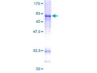 CTBP2 Protein