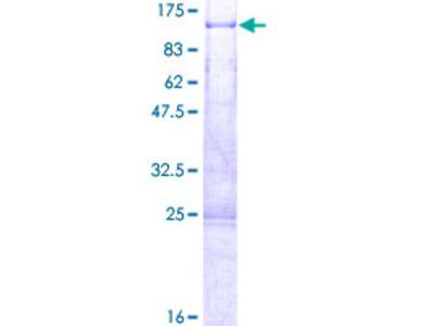 KIAA0427 / CTIF Protein