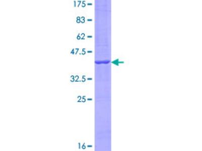 CCDC126 Protein