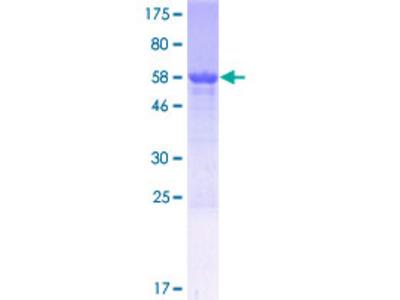 CCDC102B Protein