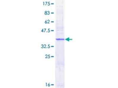 AP1S1 Protein