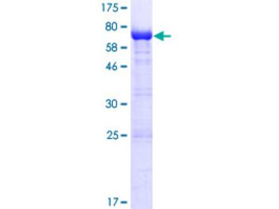HUFI-2 / LRRFIP2 Protein
