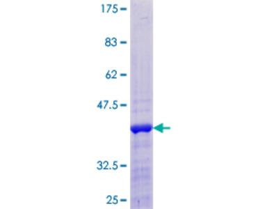 CREBL2 Protein