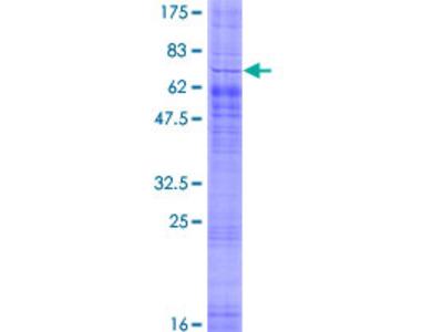 SREB / GPR85 Protein