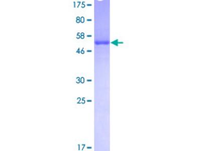 SNRPA / U1A Protein