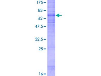 HCAR3 / GPR109B / HM74 Protein