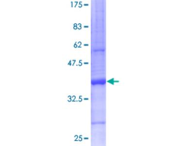 SCGB2A2 / Mammaglobin A Protein