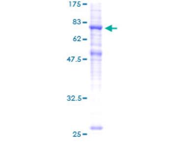 SLC39A7 / ZIP7 Protein