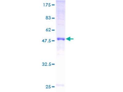 GJB5 / CX30.1 / Connexin 31.1 Protein