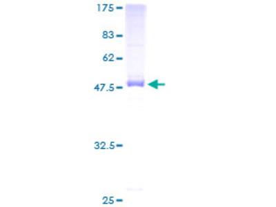 SDS Protein
