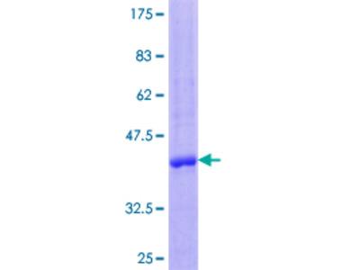 CCL23 / MIP3 Protein