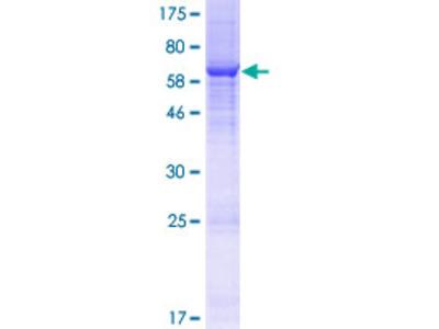 BRCTD1 / ANKRD32 Protein