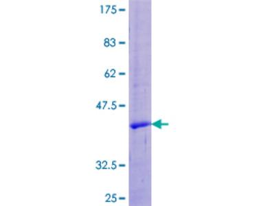 UTS2 / Urotensin II Protein