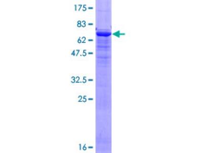ACTC1 / Alpha Cardiac Actin Protein