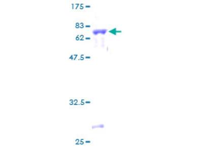 SIRT3 / Sirtuin 3 Protein
