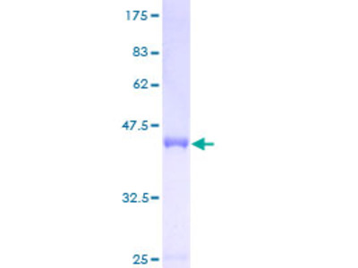 ASF1B Protein