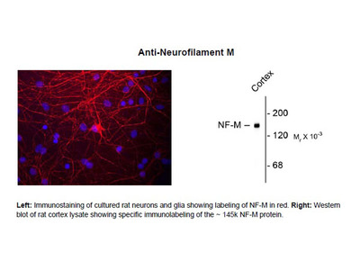 Anti-Neurofilament M (NF-M)