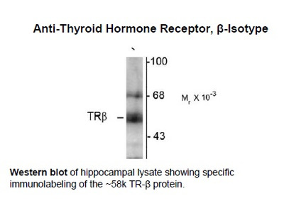 Anti-Thyroid Hormone Receptor, beta-Isotype