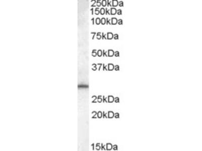 Goat anti-MTHFD2L Antibody