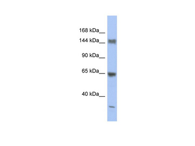 ATXN2 antibody - middle region (ARP38210_P050)