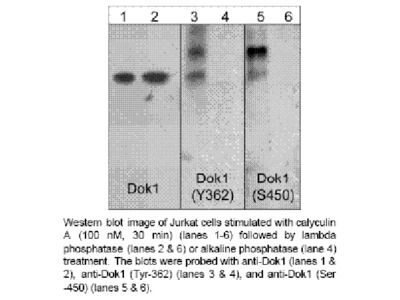 Dok1 (Ser-450), phospho-specific