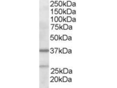 Goat anti-ARP2/3 subunit 1B Antibody